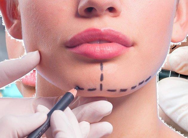 detalles quirúrgicos de un aumento de mentón