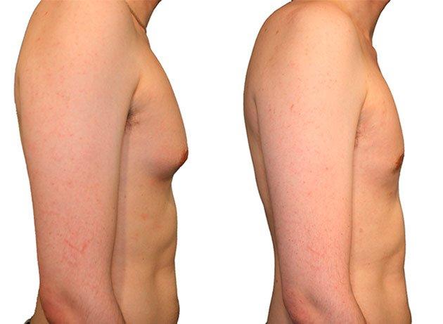 Mostrando figura antes y después de una ginecomastia (Reducción de pecho en hombres)
