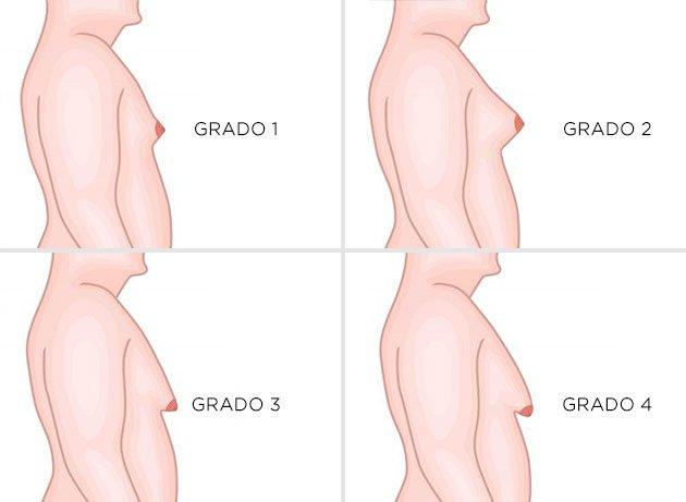 grados de la ginecomastia