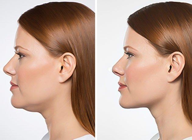 Paciente mostrando el rostro antes y después de una Liposucción de Papada