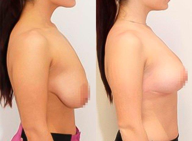 Paciente mostrando cuerpo antes y después de una mastopexia o levantamiento de mamas