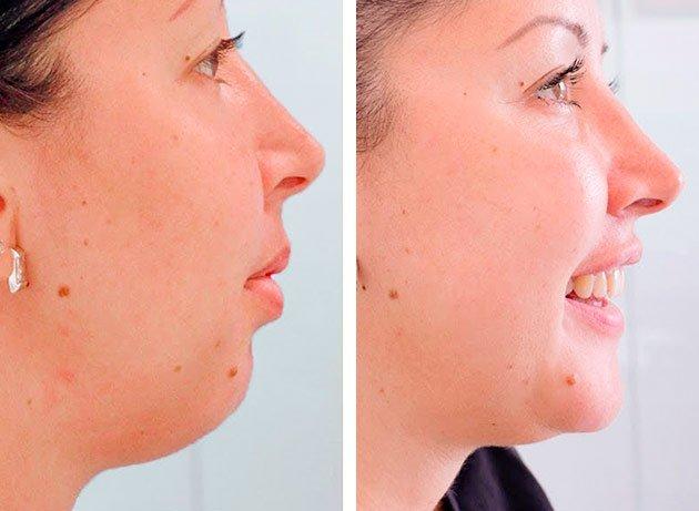 Paciente antes y después de una Mentoplastia