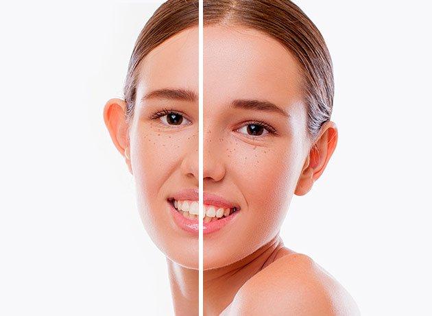 Paciente antes y después de una otoplastia