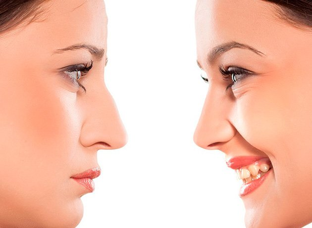 Paciente después de una operación de nariz o rinoplastia