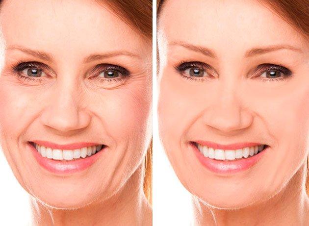 Paciente mostrando su rostro antes y después de un lifting o estiramiento facial