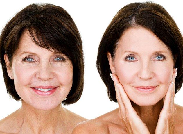Paciente mostrando rostro antes y después del lifting facial