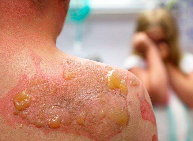 Paciente lista para una cirugía plástica por quemaduras
